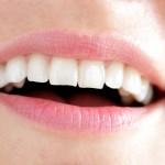 Facings op scheve tanden