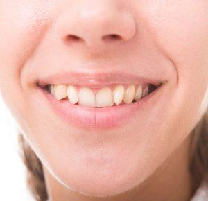 Scheve tanden